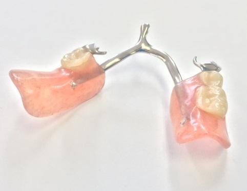 「レジン床義歯」(歯科用プラスチック製)