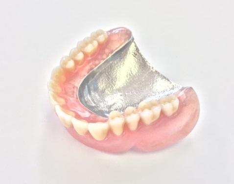 「金属床義歯」