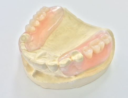 「センス」サーモセンスデンチャー(フレキシブル義歯)